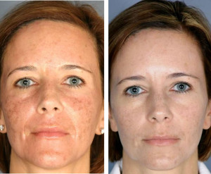 Skin Pigmentation Treatments